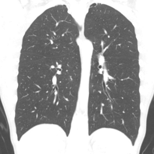 CT scan of thorax in sagittal plane showing bilateral bleb disease in a 14 year old girl who has only been symptomatic on the left. No evidence of residual pneumothorax.